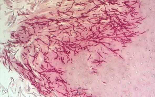 Inmunidad Innata a hongos patógenos