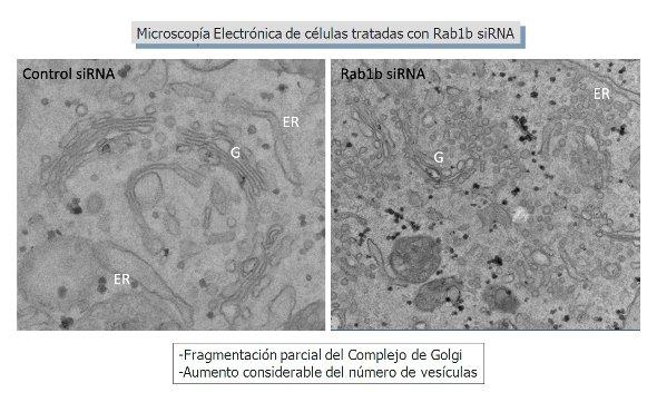 Transporte de proteínas en la vía secretora