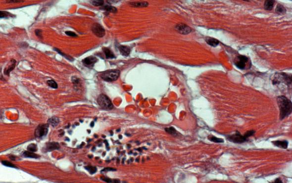 Cardiac Innate Immunity