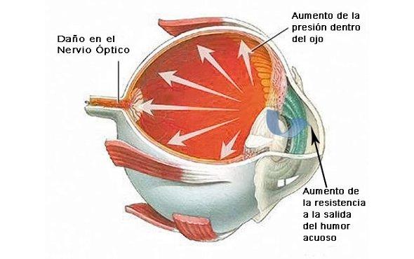 Mecanismos moleculares involucrados en enfermedades inflamatorias oculares