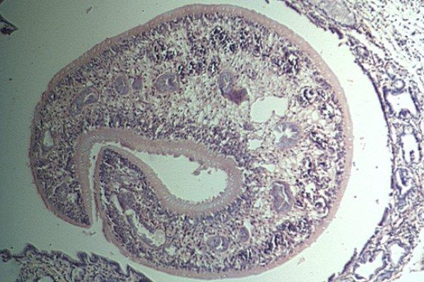 Inmuno modulación por parásitos helmintos