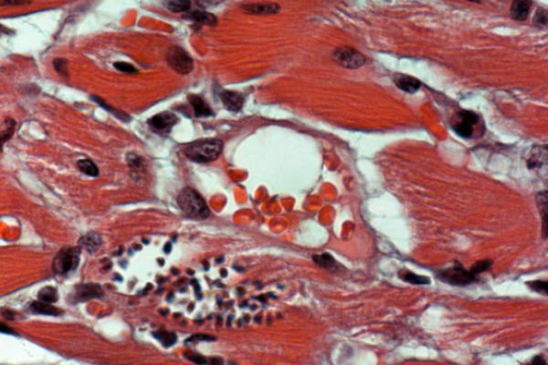 Inmunología Cardíaca