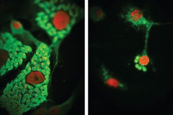 Células Presentadoras de Antigeno como Reguladoras de la Respuesta Inmune Innata y Adaptativa