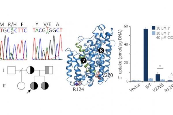 Identificación de la mutación compuesta heterocigota R124H/V270E en el gen que codifica el transportador de sodio/ioduro en un paciente con hipotiroidismo congénito. Fuente: Nicola et al. J Clin Endocrinol Metab. 2015; 100:E1353-61